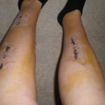 Physical Therapy for Compartment Syndrome: My Story